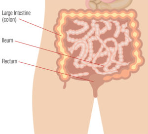 Chrohn's disease what parts of the body does it affect diagram