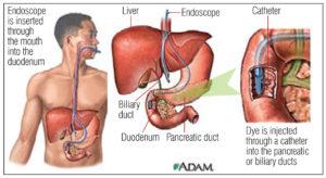 Endoscope RCP procedurediagram