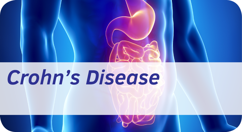 Exeter Gut Clinic Crohn's disease treatment cta