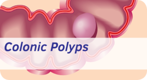 Exeter Gut Clinic Colonic polyps treatment devon cta