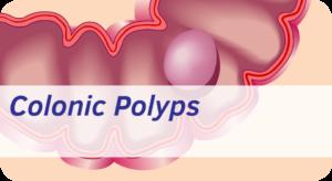 Exeter Gut Clinic Colonic polyps treatment devon cta