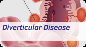 Exeter Gut Clinic Diverticular Disease Treatment Devon cta