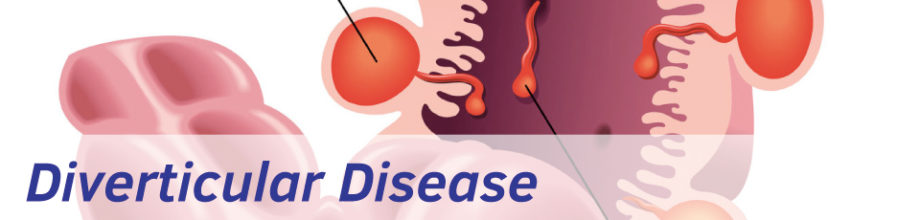 Diverticular disease is extremely common