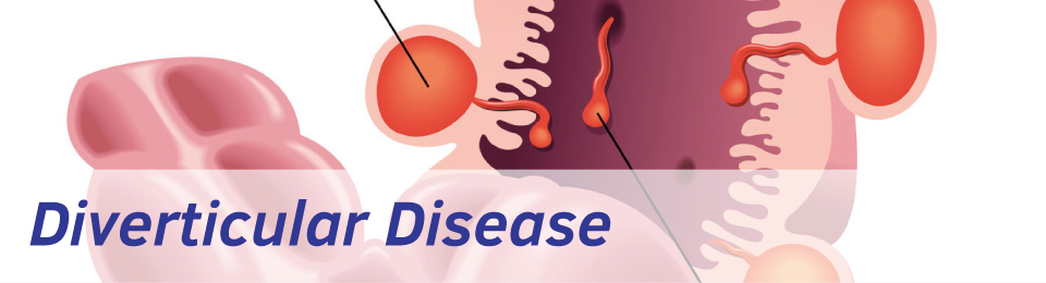 Diverticular disease treatment from Exeter Gut Clinic | Exeter Gut