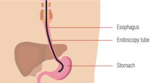 Exeter Gut Clinic endoscopy diagram