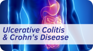 Exeter Gut Clinic Ulcerative Colitis & Crohns cta