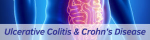 Exeter Gut Clinic Ulcerative Colitis & Crohns disease treatment header