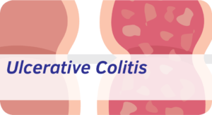 Exeter Gut Clinic Ulcerative Colitis cta