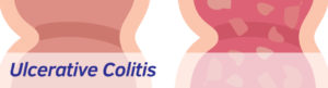 Exeter Gut Clinic Ulcerative Colitis treatment header