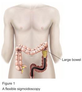 Flexible Sigmoidoscopy procedure diagram