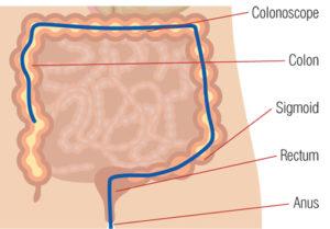Ulcerative colitis colonoscope in colon diagram