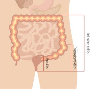 Ulcerative colitis diseased body diagram