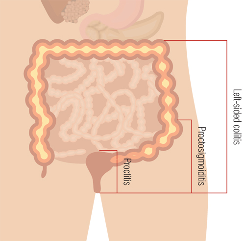 Ulcerative colitis diseased body diagram