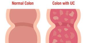 Ulcerative colitis normal colon and UC colon diagram