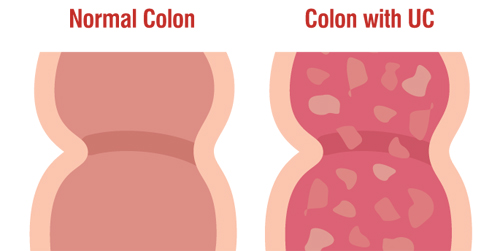 Ulcerative colitis normal colon and UC colon diagram