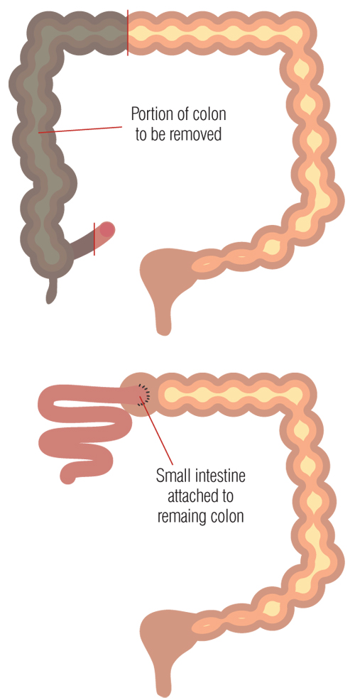 Ulcerative colitis treatment diagram