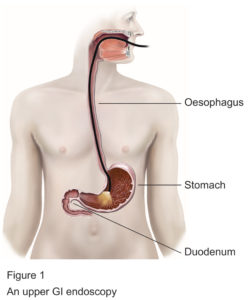 Upper GI endoscopy procedure diagram