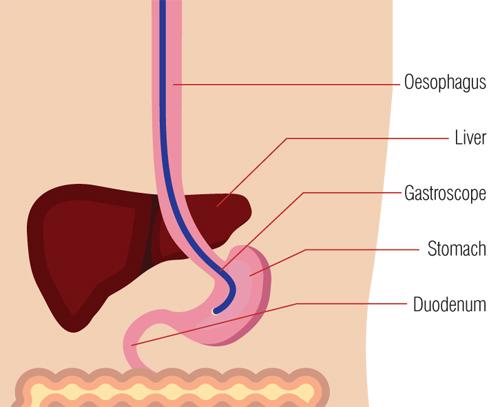 Indigestion endoscopy diagram