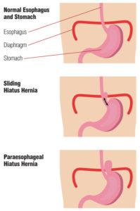 normal esophagus and stomach vs sliding hiatus hernia vs paraesophageal hiatus hernia diagram
