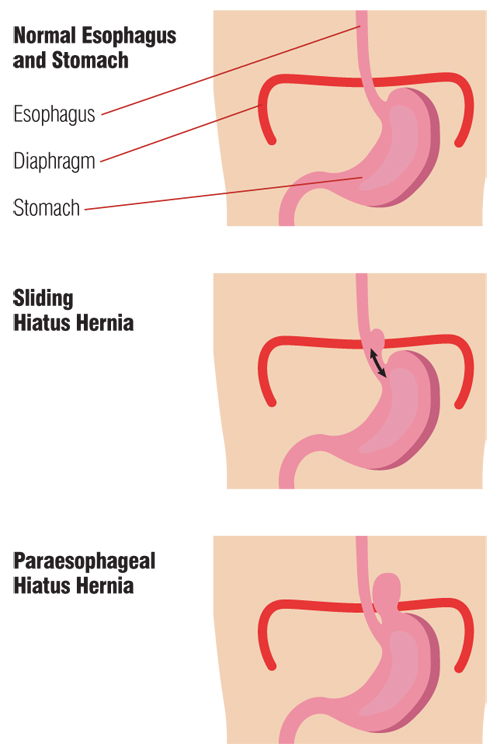 normal esophagus and stomach vs sliding hiatus hernia vs paraesophageal hiatus hernia diagram