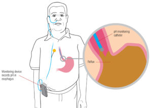 reflux heartburn monitoring devices records ph in esophagus diagram