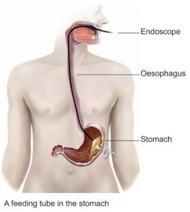 A feeding tube into the stomach diagram