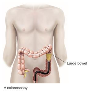 Colonoscopy procedure diagram
