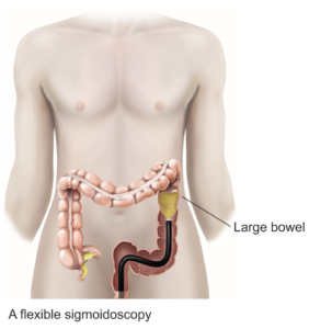 Flexible sigmoidoscopy procedure diagram