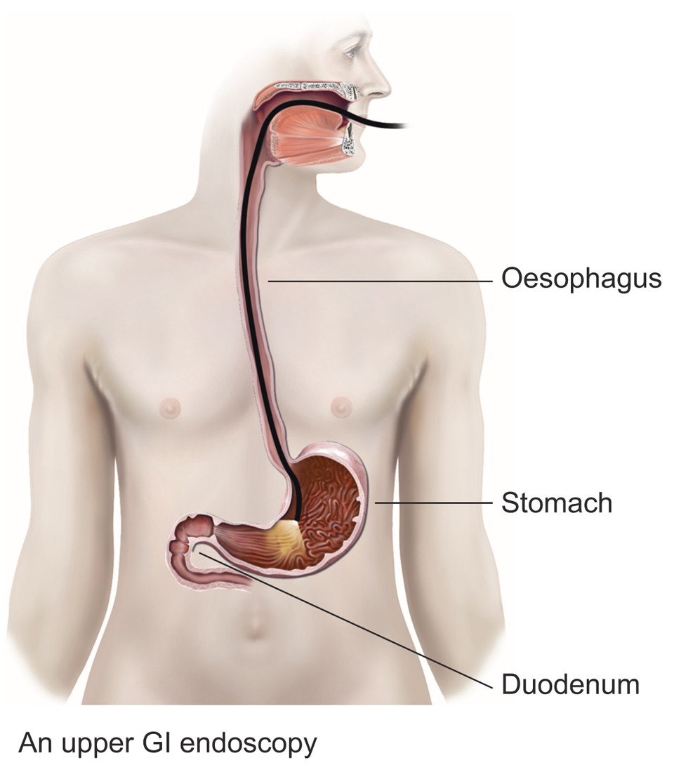 Upper GI endoscopy procedure diagram